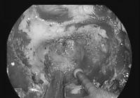 Đau đầu kéo dài, chụp MRI phát hiện u sàn sọ cực hiếm
