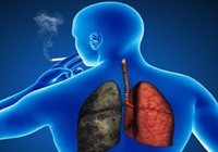 Số người chết do COPD vượt qua số người chết do ung thư