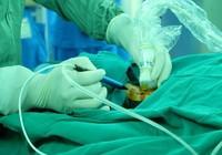 Phương pháp mới điều trị bướu cổ không cần phẫu thuật