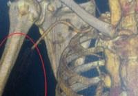 Tắc động mạch, suýt cắt bỏ tay mà cứ ngỡ đau xương