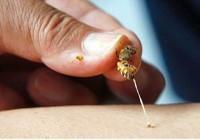 Phun thuốc vườn, bị ong đốt 130 mũi vào đầu nguy kịch