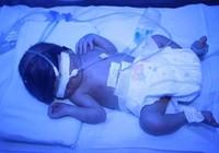 Cứu sống bé sinh non 1,3 kg bị suy hô hấp