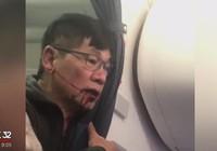 United Airlines dàn xếp bồi thường ông David Dao
