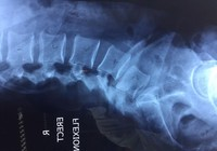 Phẫu thuật cột sống cho bệnh nhân nước ngoài