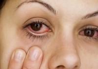 Cảnh báo việc đắp lá trầu chữa bệnh đau mắt đỏ