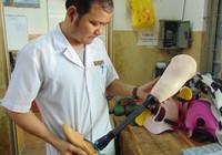 Một BV nhận làm chân giả cho bé bị cắt chân oan uổng