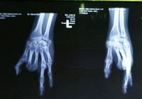 Một bàn tay có hai… ngón chân