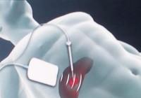U gan ác tính nên điều trị bằng phương pháp nào?