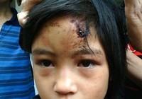 Audio: Giải cứu bé gái bị nhốt trong chùa
