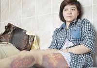 Audio: Nữ công nhân bị công an đánh đã xuất viện