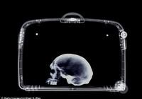 Giáo sư người Đức bị bắt vì mang sọ người đến sân bay