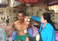 Lời kể của người xe ôm bị cướp đâm trọng thương ở Sài Gòn