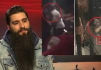 Đạo diễn phim King Kong bị đánh trong quán bar