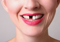Bị gãy 1 răng, được bồi thường 65 triệu đồng