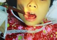 Hi hữu bé gái bị đôi đũa đâm thủng lưỡi