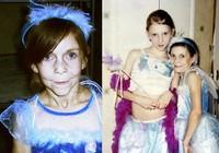 Phẫu thuật cho bé gái 16 tuổi mang gương mặt bà cụ