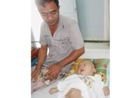 Bé trai một tuổi bị não úng thủy