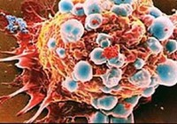 Phát hiện ra loại protein có thể ngừa ung thư vú