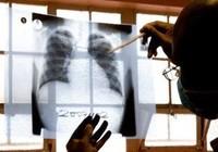 Vì sao các bác sĩ bị hút về Mỹ?