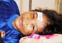 Vụ bé Hào Anh ở Cà Mau bị hành hạ dã man: Phải tính thêm thiệt hại phi vật chất