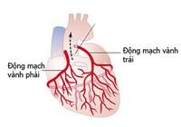 Cứu sống nhiều ca mạch vành cấp nặng cấp cứu