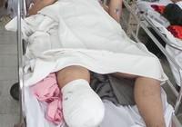 Vụ sập công trình tại Cần Thơ: Một nạn nhân bị cắt cụt chân