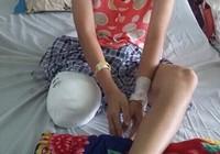 Vụ nữ sinh bị cưa cụt chân: Bộ Y tế yêu cầu làm rõ