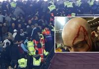 CĐV Chelsea và West Ham ẩu đả ngay trên sân