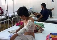 Cha phóng hỏa, 2 mẹ con nhập viện vì bỏng