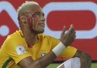 Ăn đòn đổ máu, Neymar tuyên bố không thay đổi cách chơi