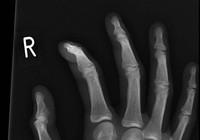 Nhập viện phẫu thuật vì răng 'chui vào' tay