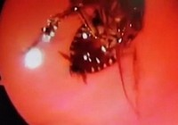 Gián chui qua mũi vào sọ người sống suốt 12 giờ
