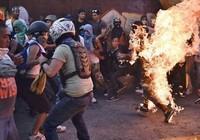 Người ủng hộ chính phủ Venezuela bị thiêu sống