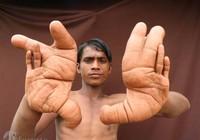 Nỗi khổ của cậu bé có 'đôi bàn tay quỷ'