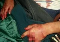 Phẫn nộ bé trai 6 tuổi bị chém, cắt dã man chỉ vì làm ồn