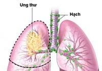 Ung thư phổi không phải là bản án tử!