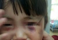 Bé gái ba tuổi bị cha dượng đánh dã man để 'trả thù'!