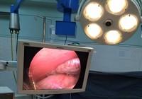 Phẫu thuật u ống mật khổng lồ cho bệnh nhi Lào
