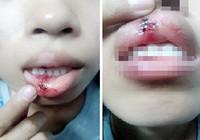 Xác minh clip 'dập môi vì đòi CSGT giải thích'