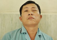 Một bệnh nhân múc bỏ mắt do nhiễm nấm