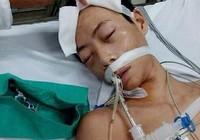 Vụ 'Đỗ Đăng Dư tử vong': Đề nghị truy tố tội cố ý gây thương tích