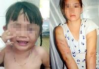 Bé gái ba tuổi bị bạo hành bất tỉnh