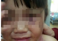 Cha dượng đánh bầm mình bé gái 3 tuổi bị bắt