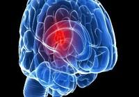 Học cao tăng nguy cơ u não