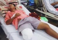 Từ ngã xe, một bệnh nhân đã bị cắt chân