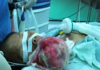 Cắt khối u hơn 1 kg trên mặt bệnh nhân 53 tuổi