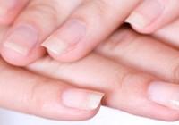 Móng tay bị mủn là bệnh gì?