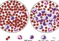 Ai dễ mắc ung thư máu?