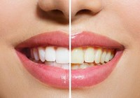 13 nguyên do gây vàng răng mà bạn không thể ngờ