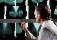 Progesterone có thể làm giảm ung thư vú